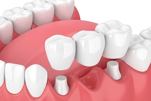 Dental Crowns and Bridges in Exton, PA