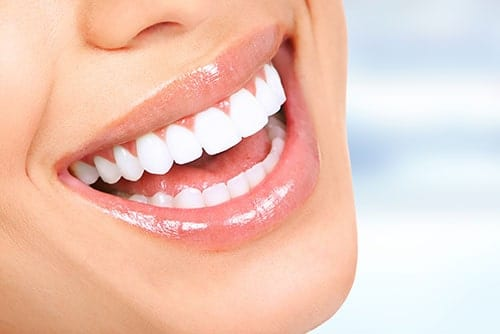 Teeth Whitening in Wyomissing,PA