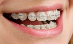 Types Of Braces Cherry Orthodontics