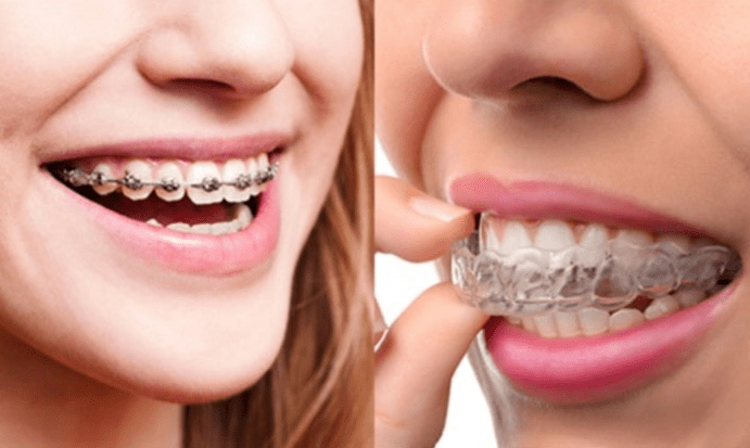 Invisalign vs. Braces in Lehigh Valley PA
