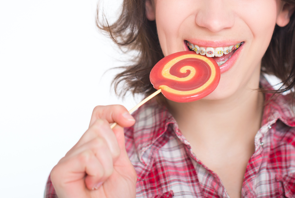 What Foods Should You Avoid With Braces?